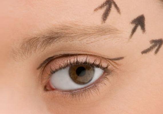 göz-kapagı-estetik-2