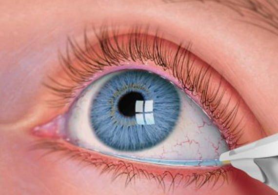 kuru-göz-tedavisi